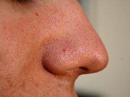 Blackheads – Acne -Pimples – Facts Causes and Treatment